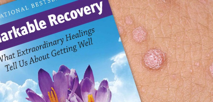 Healing Warts With the Mind